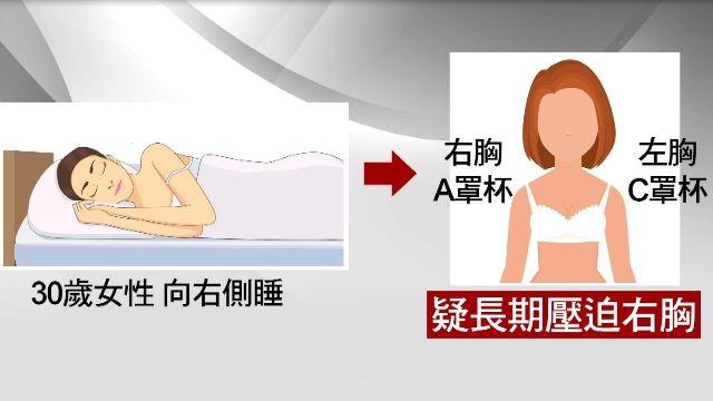 側睡變大小胸!30歲輕熟女左右胸「差2罩杯」