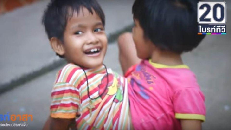 【影片】四手兩腳連體童 「蟹式」走路扶持上學去