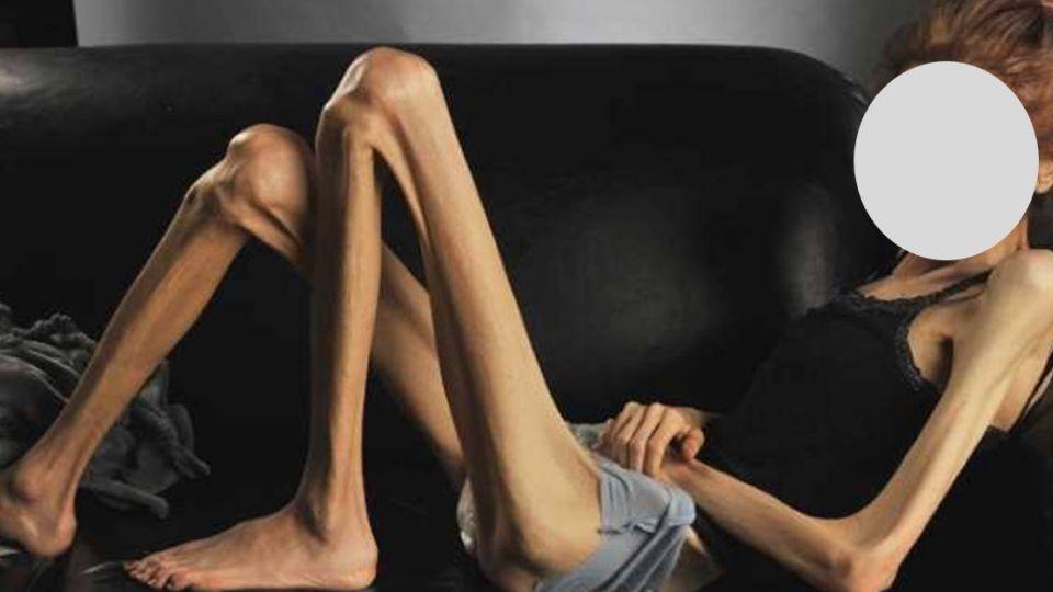 40公斤被笑胖!國中少女減到21公斤還嫌不夠