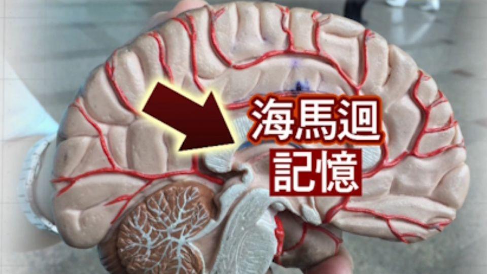撞擊失憶? 醫:管記憶「海馬迴」深處難受損