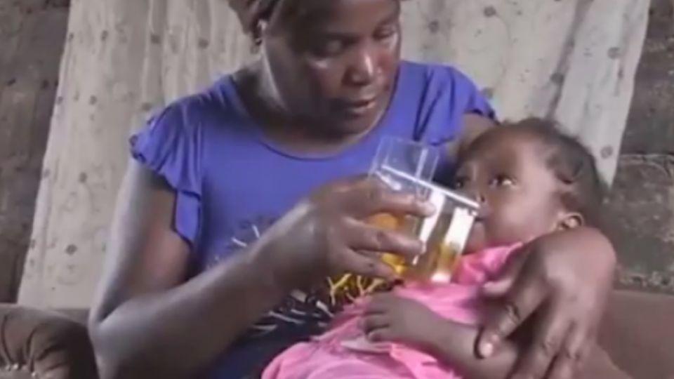 多數活不過5歲!非洲貧童死亡率高