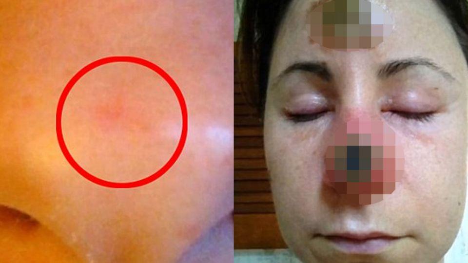 【影片】怕留疤毀容!女子亂信偏方 鼻上反燒出大窟窿