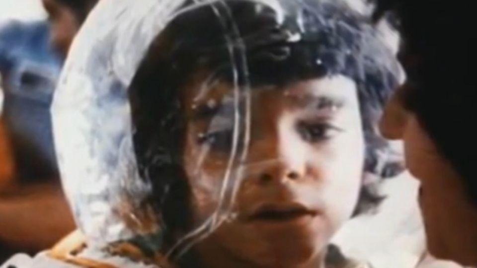 出生20秒進泡泡 「泡泡男孩」死前父母才觸摸他