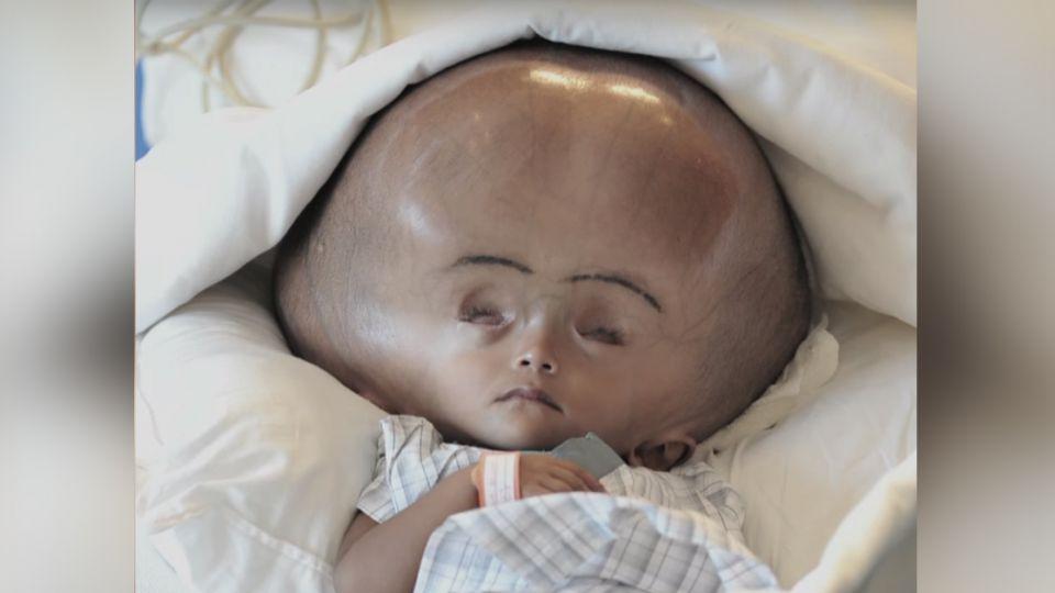【影片】抽出逾10公升腦液 印度「巨腦女娃」獲新生