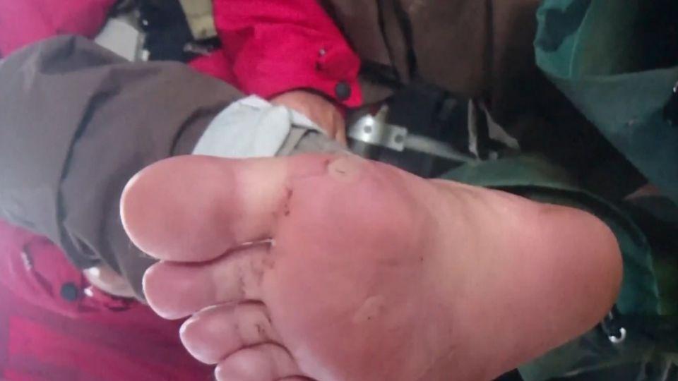 腳破皮叩直升機 登山客喊冤:蜂窩性組織炎