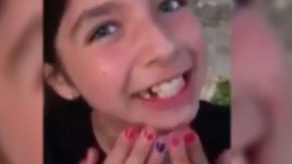 乳牙鬆了怎麼辦?10歲童請狗幫忙拔