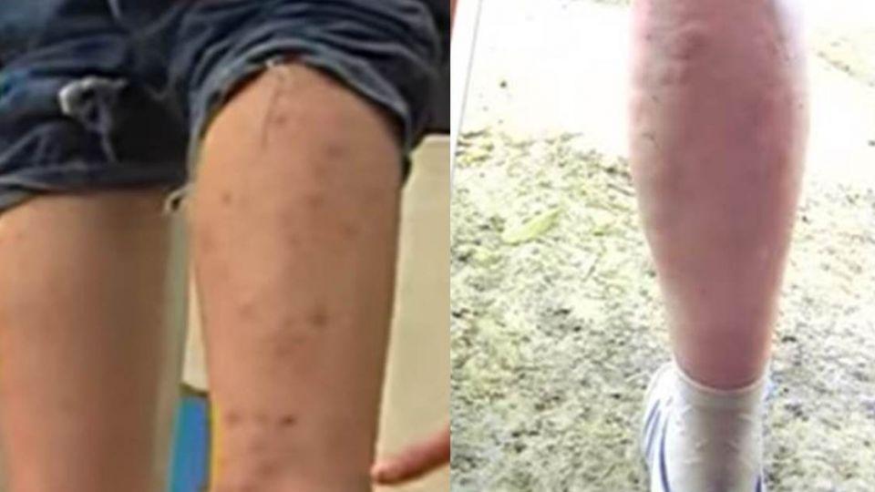 【影片】夏天黑色轟炸機!「牠」不是蚊 咬到嚴重恐休克