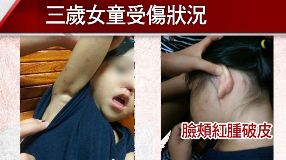 三歲童臉頰手臂紅腫傷痕 家長指控師虐童