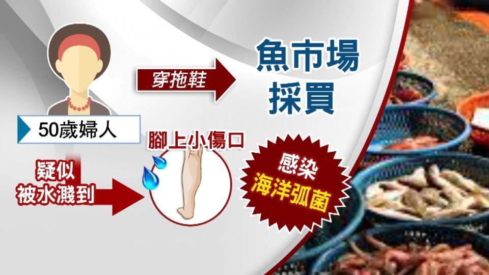 遭水濺腳腫痛! 婦買魚感染海洋弧菌險喪命