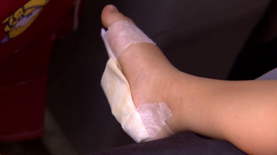 太陽直曬 溜滑梯平台鐵片燙傷女童雙腳