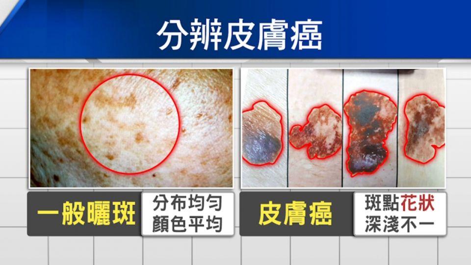 小心! 男子從沒防曬 「皮膚癌」誤認長斑