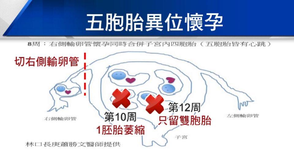 人工生殖1次五胞胎 創亞洲最多異位懷孕紀錄