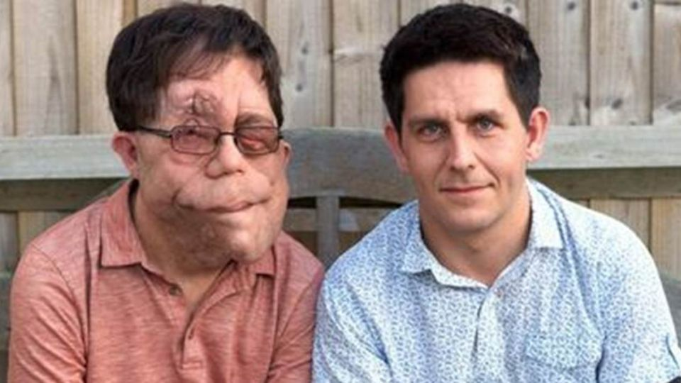 他們是雙胞胎!同樣怪病吞噬不同人生 1人毀容1人失憶