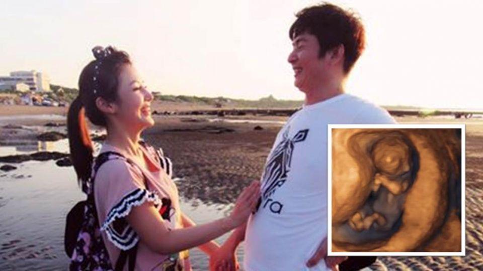 《甘味人生》陳子玄有孕3個月 秘婚大15歲《世間情》男星