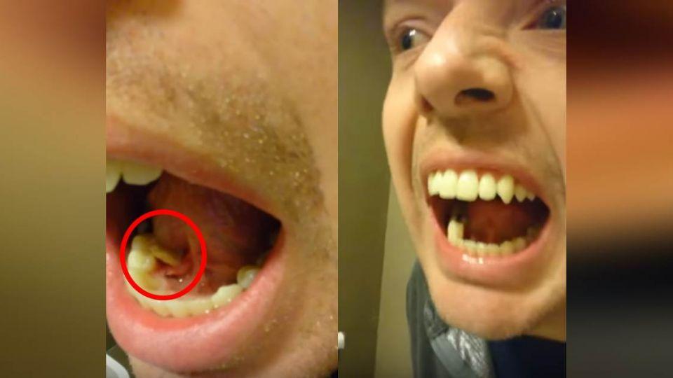 【影片】舌下劇烈疼痛!男子用力一擠 竟爬出3公分「白色大蟲」