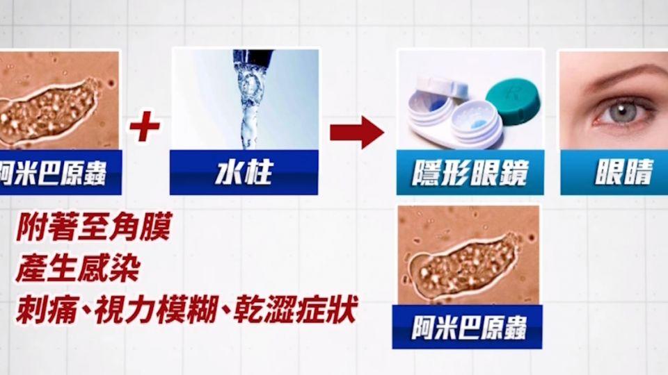 洗手沒擦乾 戴隱形眼鏡染阿米巴原蟲 角膜潰瘍