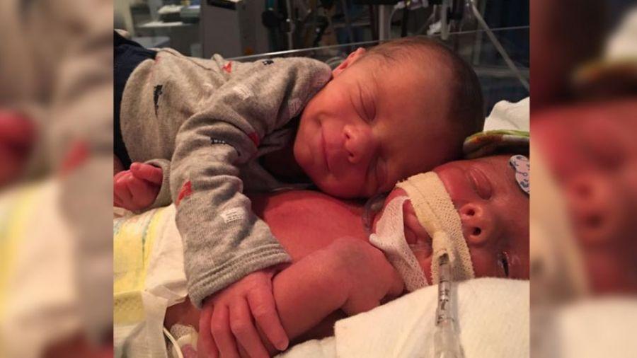 雙胞胎兄患罕病 弟弟「一個擁抱、一抹微笑」感動十萬人