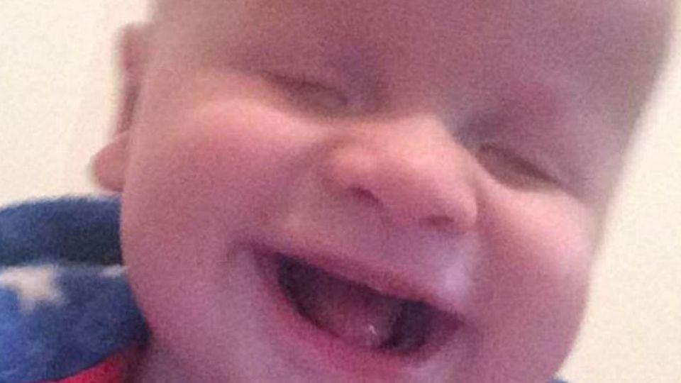 天生無眼珠!14個月大男嬰卻有一雙「愛笑的眼睛」