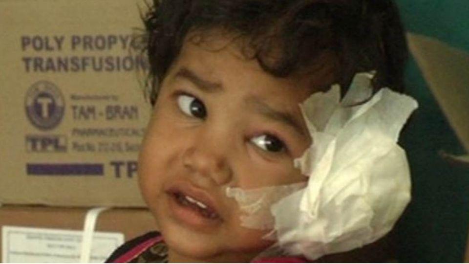 險吃掉腦袋!4歲女童哭鬧不停 醫生從耳朵內夾出80條蟲