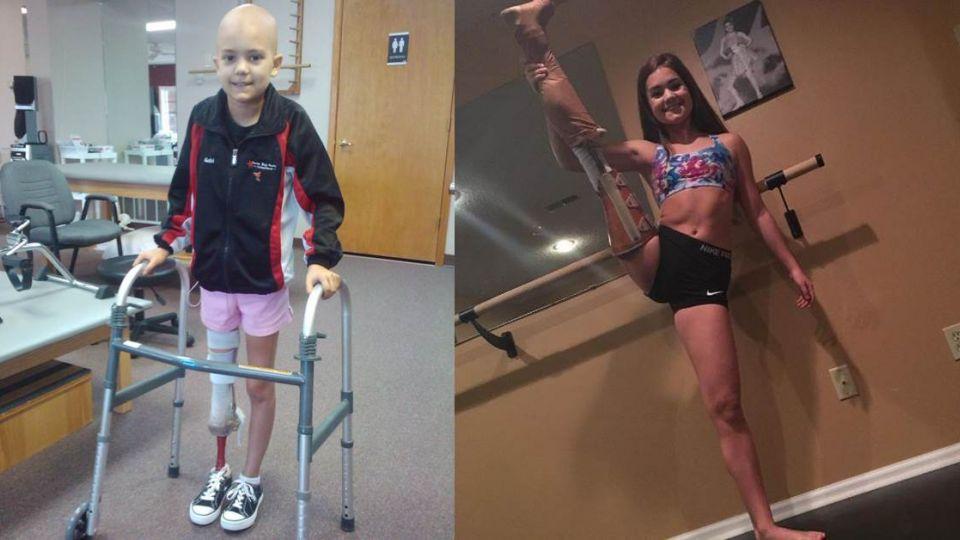 【影片】9歲童罹癌截肢「堅持不放棄」 她花六年重新站回芭蕾舞台