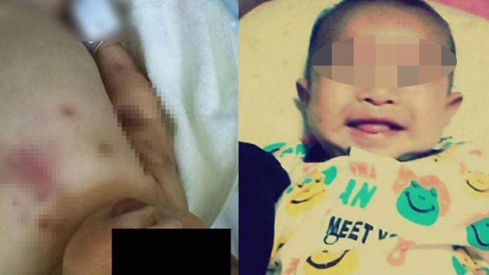 19歲狠媽與小王下毒手 女嬰脾臟破裂、重摔亡