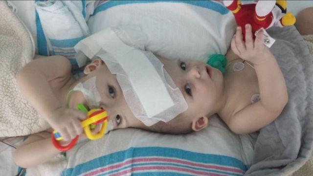17小時接力救命!連體雙胞胎成功分離 重獲新生