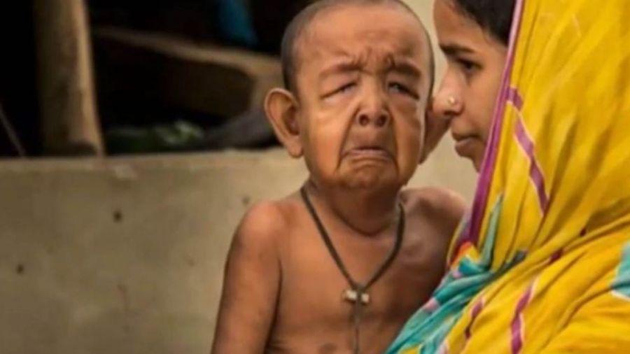 【影片】擁超齡智慧!4歲童靈魂受困80歲身軀 醫:恐活不過15歲
