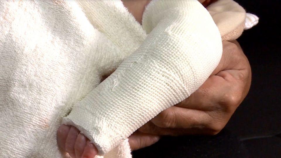 出生17天嬰兒左手臂骨折 母控月子中心