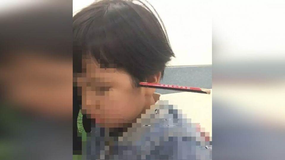 嚇!尖銳鉛筆頭插眼眶 差1公分4歲女童險失明