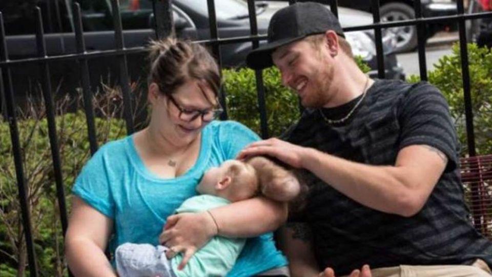 【影片】嬰兒患「腦膨出」怪病 醫生「開腦切骨」救生命