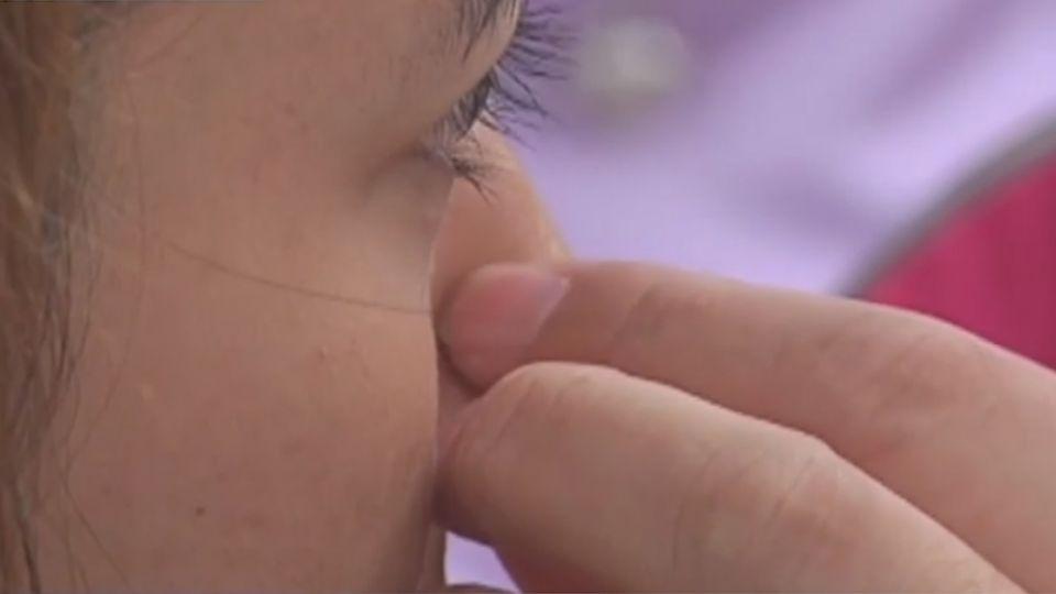 控玻尿酸隆鼻「右眼看不見」 醫已離職槓診所