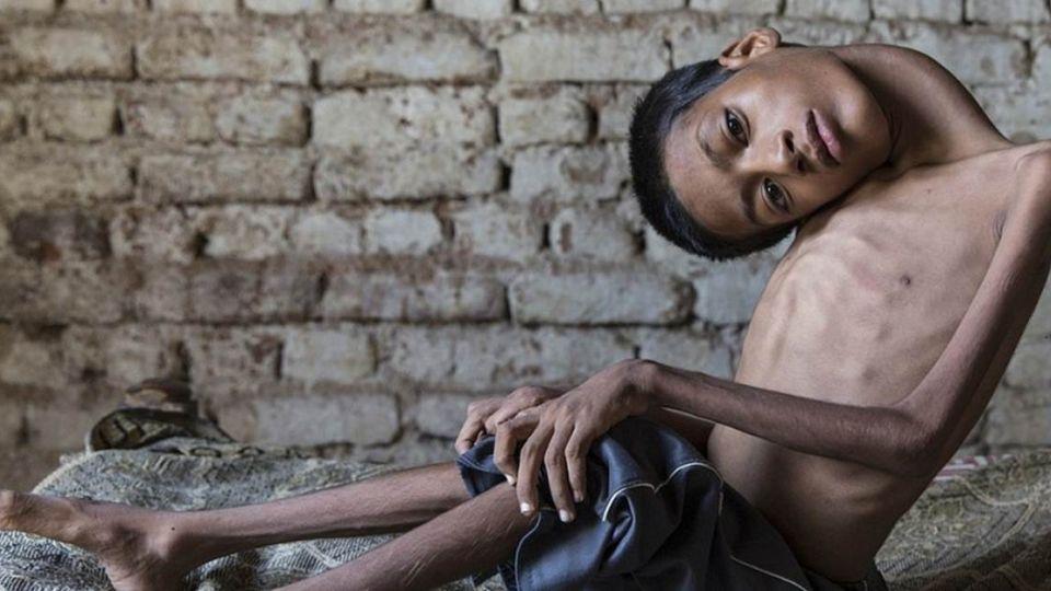「顛倒世界」男孩當天使了!全球暖捐讓他懷抱8個月夢想