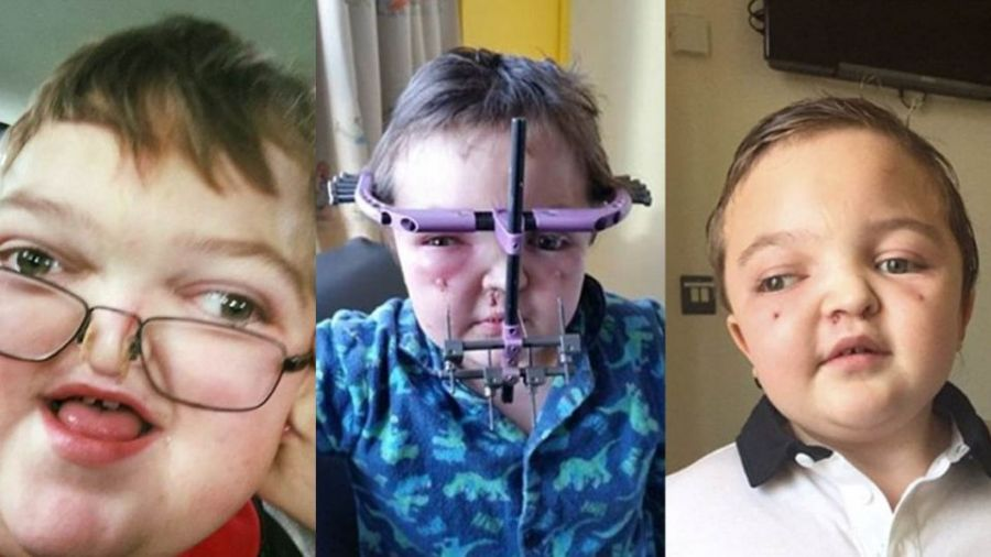 英罕病童歪臉斜眼 堅強忍痛30次碎骨手術