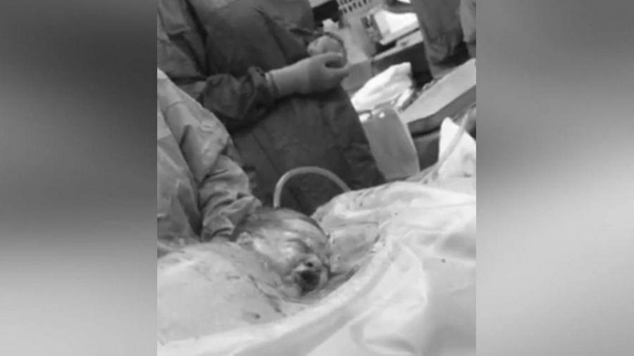 美麗的一刻!?「自然剖腹」讓嬰兒自己爬出媽媽肚皮