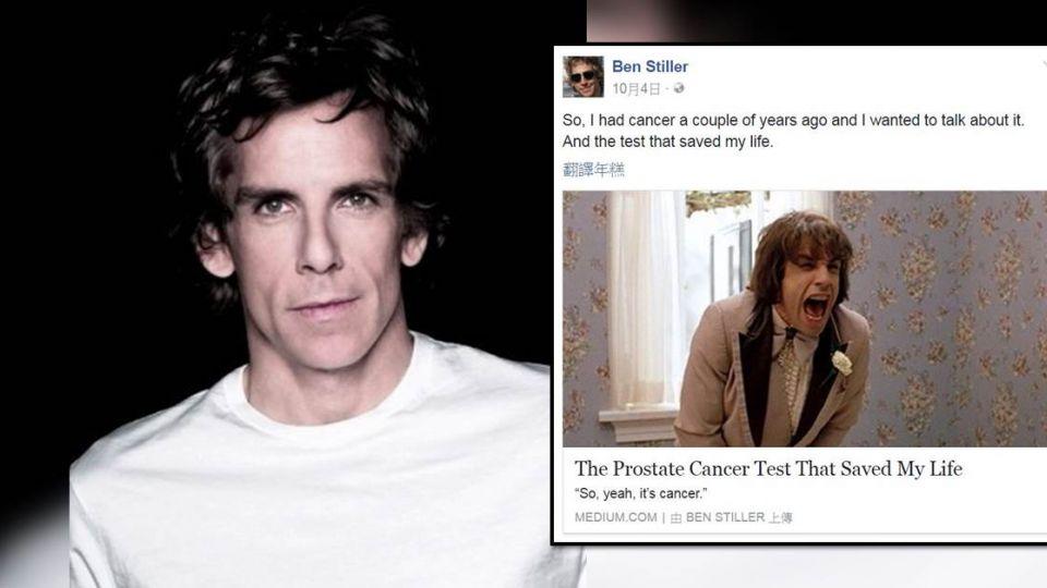 班史提勒罹前列腺癌! 癒後自爆性功能受損又失禁