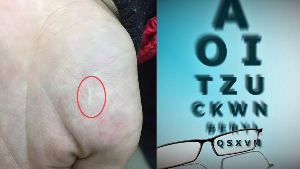 超扯「神醫」!女童嫩掌沒麻醉 小刀劃6公分放血治近視