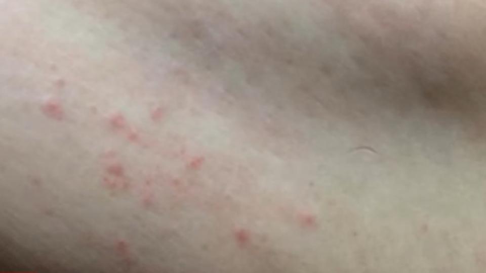 出遊入住四星級飯店 全身紅疹疑遭蚊蟲咬