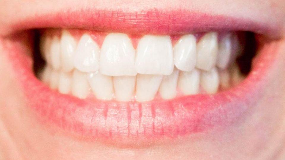 牙齒有望再生!蛀牙自己補 阿茲海默藥助「長牙」