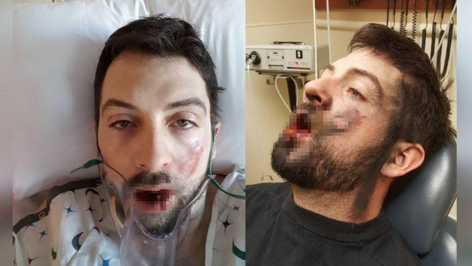 驚悚!電子菸「口中爆炸」 壯男滿嘴碎片痛失7牙