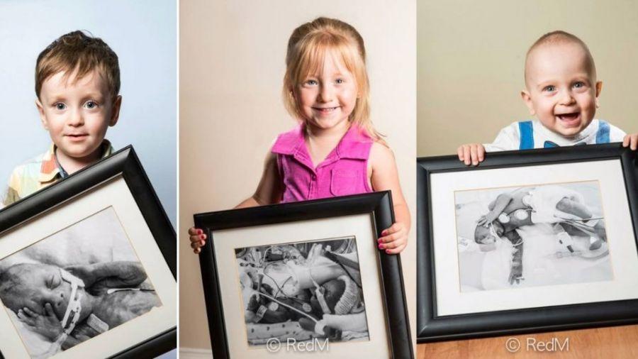 瀕死早產兒長大後與出生照片合照 告訴大家什麼叫奇蹟