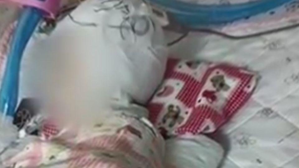 遭保母「頭下腳上」把玩墜地 1歲4月大女嬰昏迷