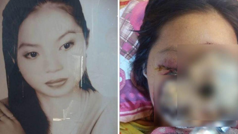 鼻竇感染真菌!28歲女星「口鼻全潰爛」 三年後喪命