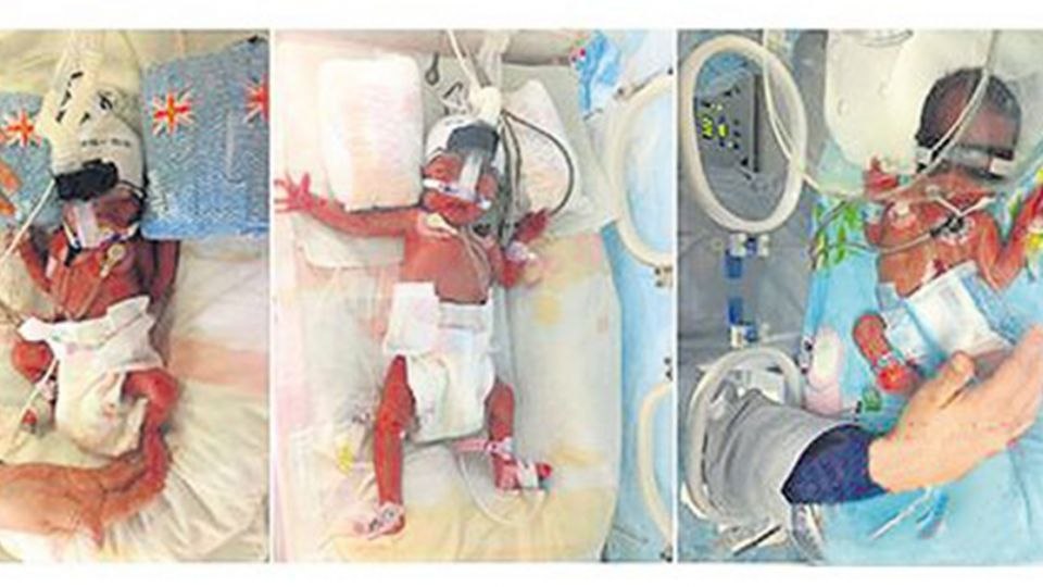 奇蹟!一週分娩2次 婦人生下兒子6天後再生雙胞胎