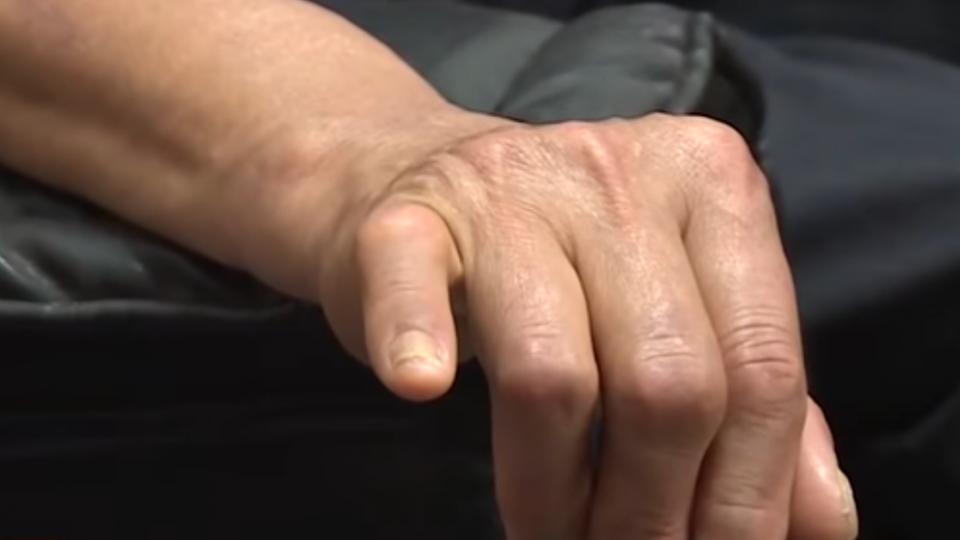 名車違規撞骨折 老翁還得自花三萬消災