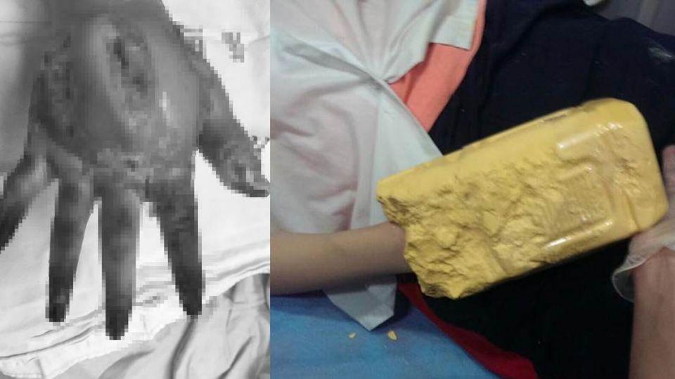 夭壽!17歲女代母行善當手模 慘遭「假貨」侵蝕手截肢