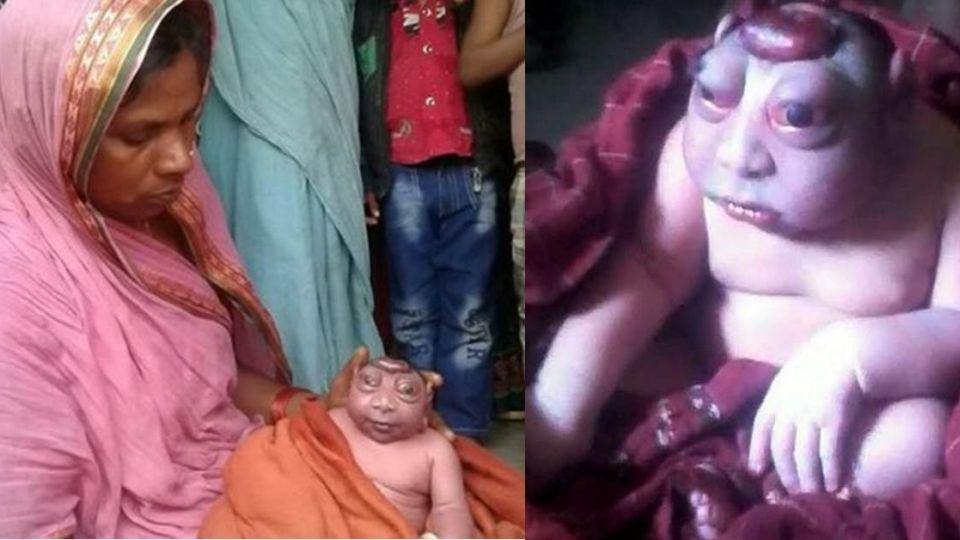 媽媽產下畸形男嬰拒哺乳 村民看到驚喊:神明轉世!