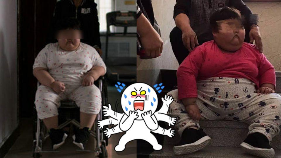 3年狂胖60公斤!7歲女童不明原因腫到變形 醫生卻這樣說…