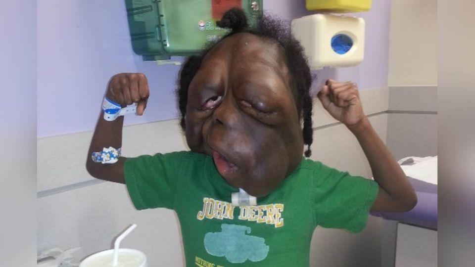 被笑戴面具怪物!8歲童罹罕病 臉佈滿腫瘤腫大如西瓜
