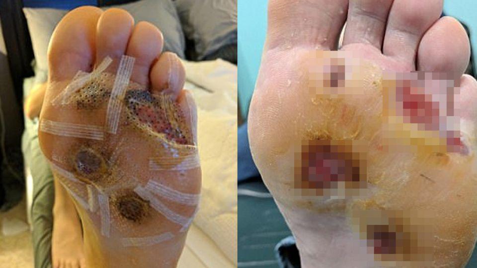 驚!健身房赤腳淋浴染「病毒疣」 5個大洞挖肉又植皮