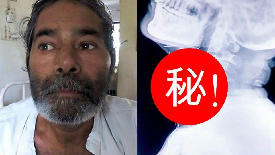 離奇!印度男腳痛照X光驚見75根針 卻完全不知情